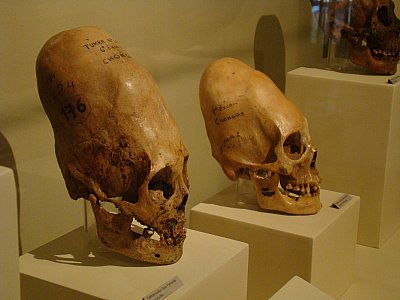 SKULLS ALL OVER THE WORLD HAVE BEEN UNEARTHED THAT HAVE THIS CONICAL SHAPE IN AREAS WHERE NO SKULL-BINDING HAS EVER TAKEN PLACE. ARE THESE THE SKELETON OF A HYBRID?
